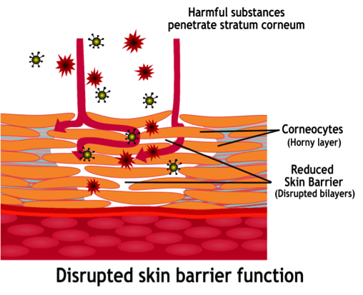 disrupted-skin-barrier-function