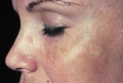 Pigmentation Disorders_3